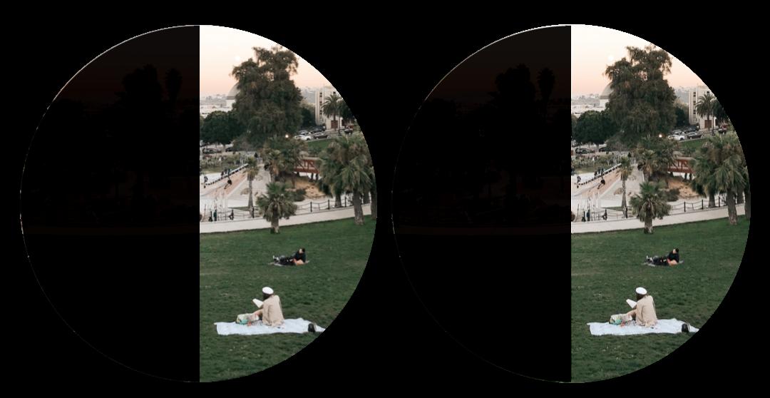 Hemianopsia-loss of one half of the visual field of each eye