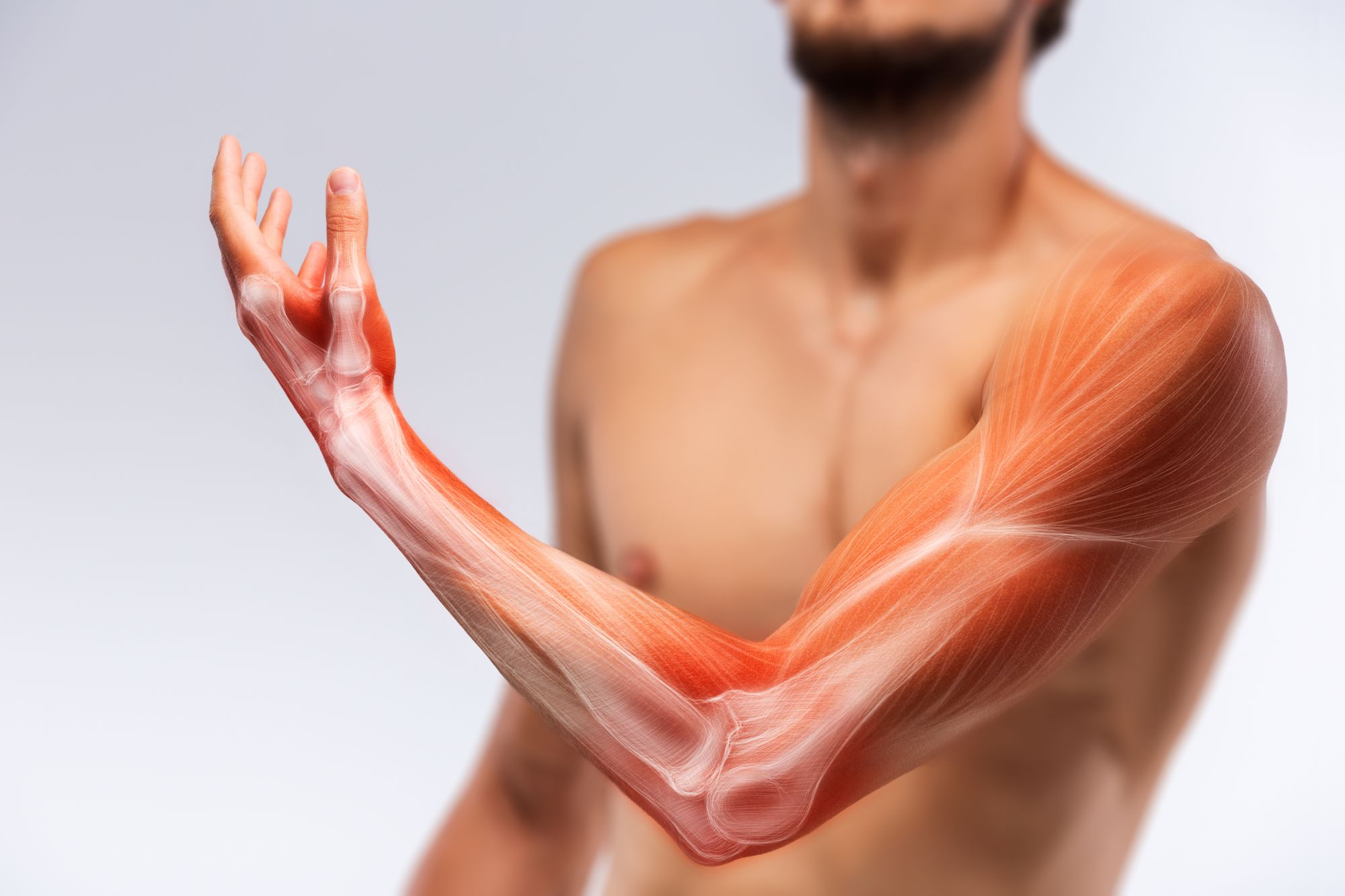 Stroke Lingo Part 3: Muscle Function Changes After Stroke