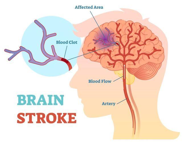Brain Stroke Diagram