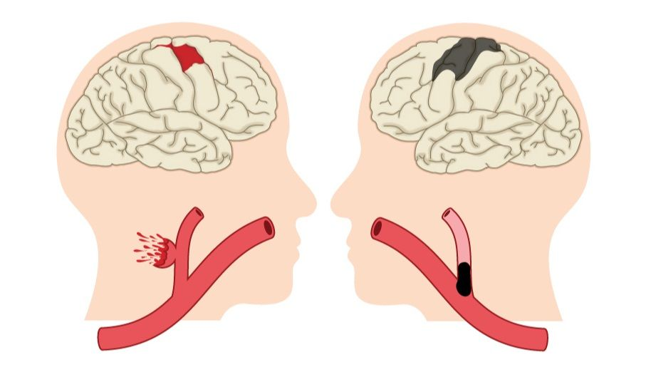 What are the Different Types of Stroke?