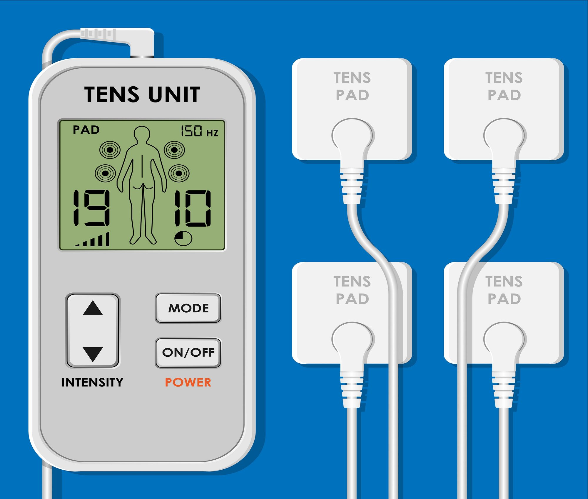 A TENS unit with attached electrode pads.