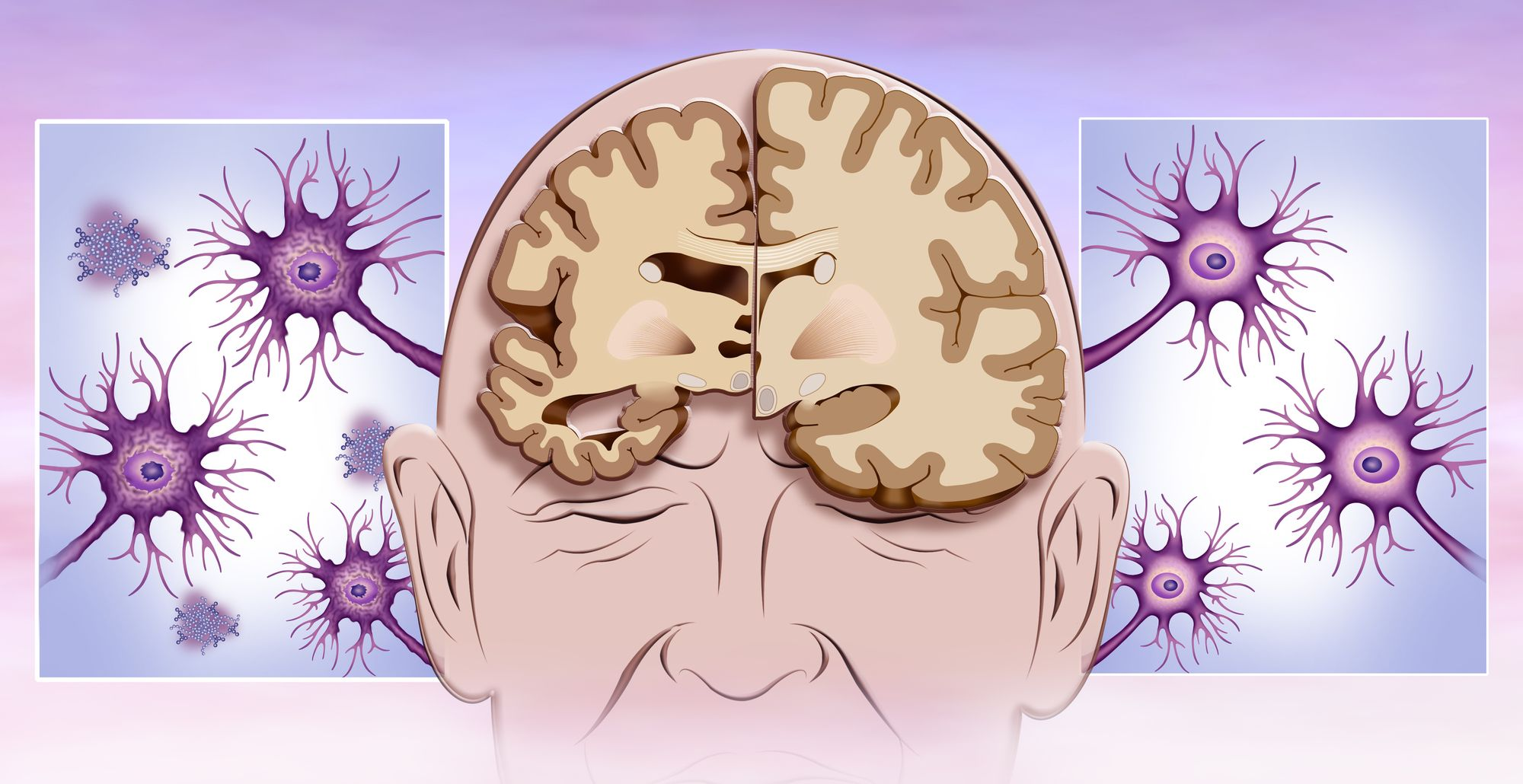 stroke and dementia can cause brain atrophy