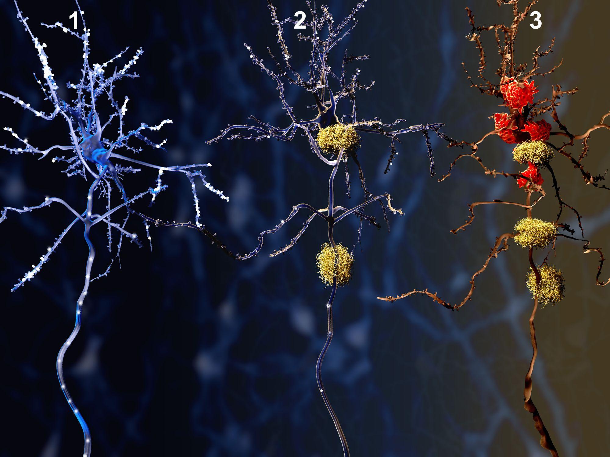 dementia Alzheimer's brain cells