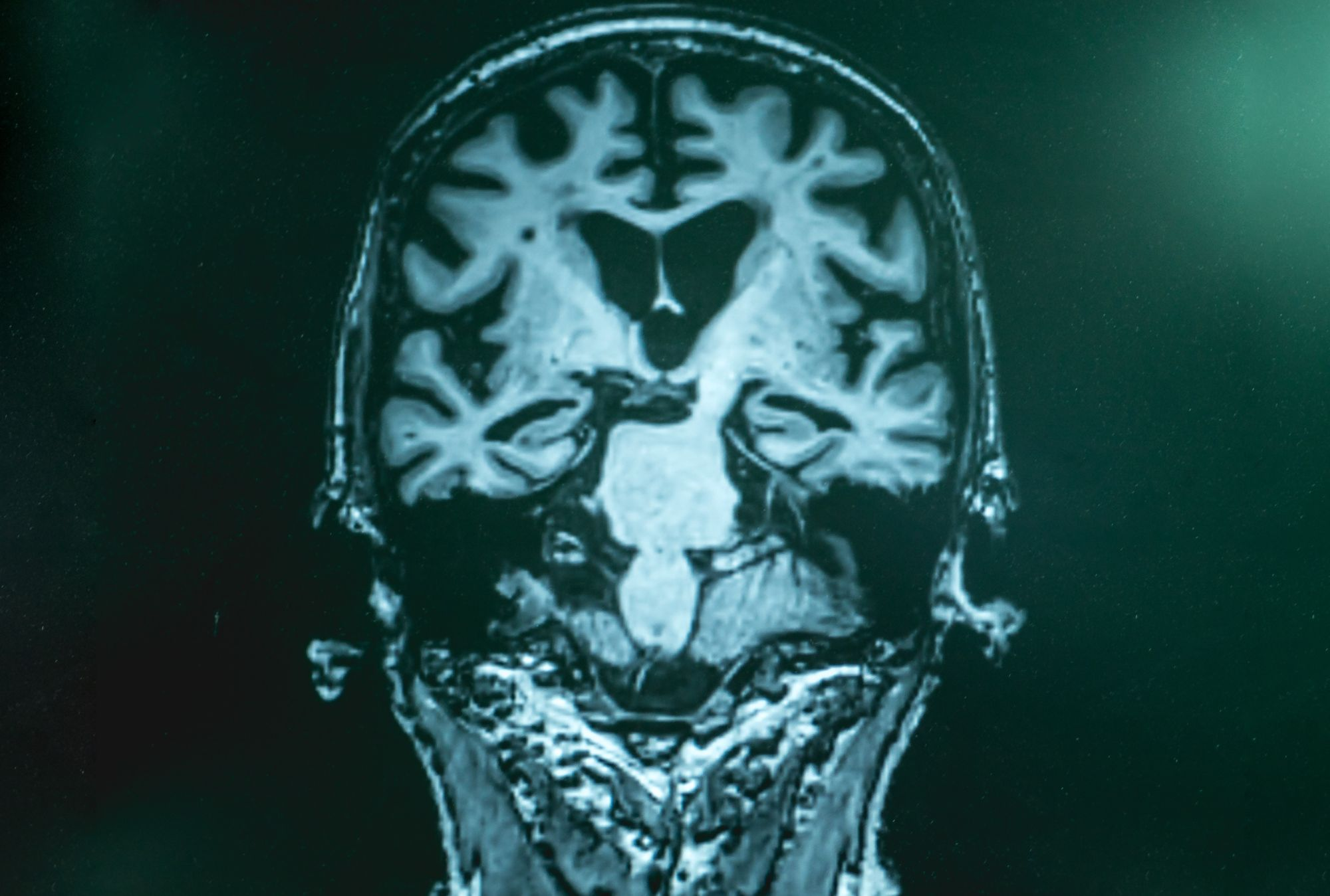 Stroke, Brain Injury, and Dementia: is there a link?
