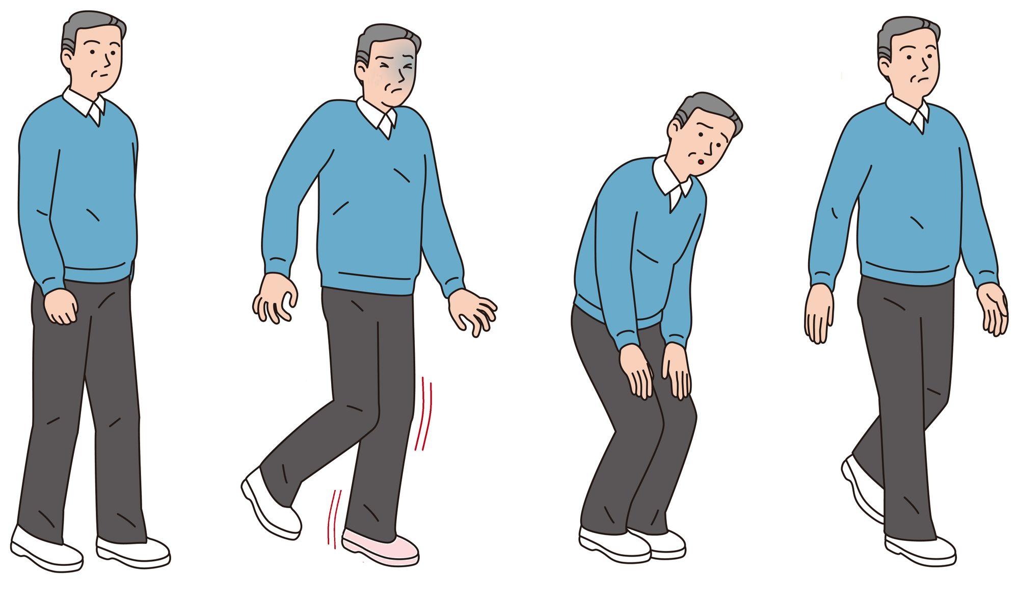 walking abnormality